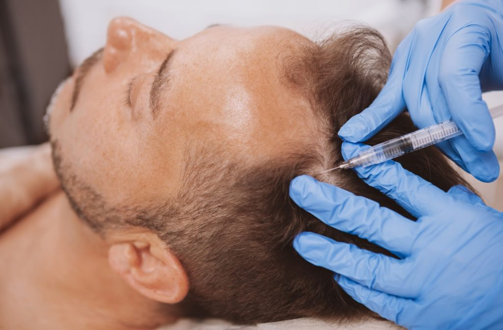 Men receiving hair loss treatment injection in scalp by professional.