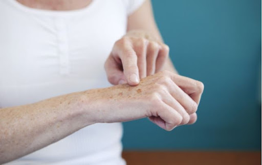 Women pointing out age spots on her arm and hands